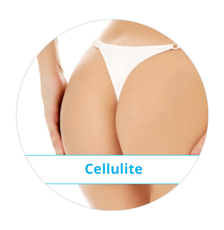 koerper_cellulite